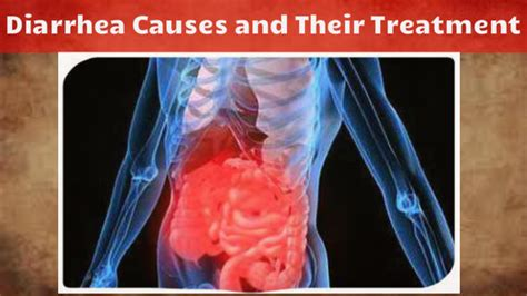 has diarrhea for 3 days dig into the general diarrhea causes and their treatment