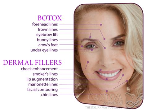 Where Your Wrinkle Filler Gets Injected Podcast by Enjoy Fixed Price Wrinkle Injections For A Whole Year