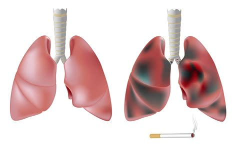 blogger lung lung healthy lung and not healthy pictures to pin on
