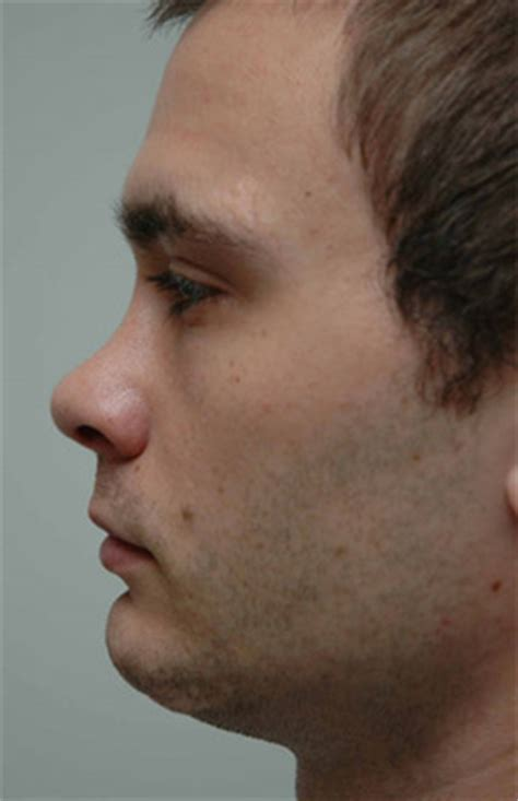 classification and treatment of the saddle nose deformity saddle nose deformity dr anil shah md facs