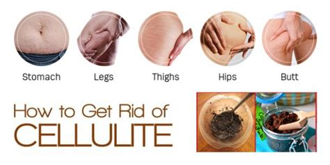 what can i use to get rid of bed bugs how to get rid of cellulite permanently my health tips