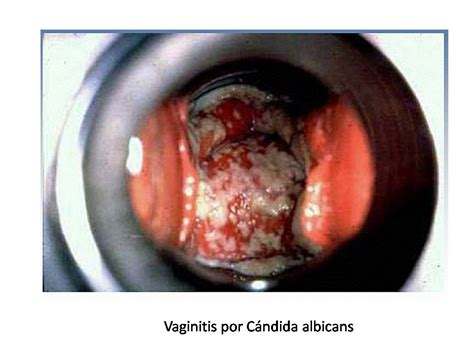 imagenes de flujo blanco en la mujer vulvovaginitis