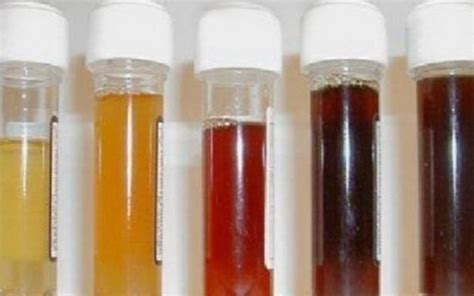 black urine what can the smell and color of my urine tell me about my