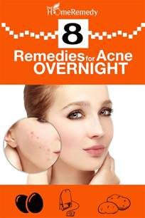 Home Remedies For Acne by 8 Home Remedies For Acne Overnight Natural Treatments