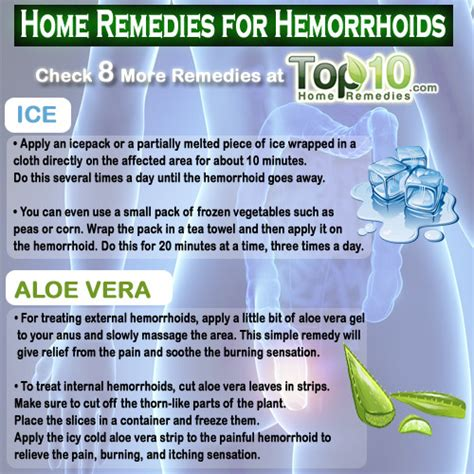 hemorrhoids home remedies home remedies for hemorrhoids piles top 10 home remedies
