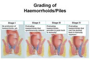 Cushion For Hemorrhoids
