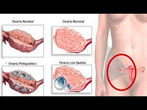 Detox Your Uterus by Uterine Cleanse After Miscarriage Thecarpets Co