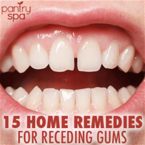 15 home remedies for receding gums diy at home tips