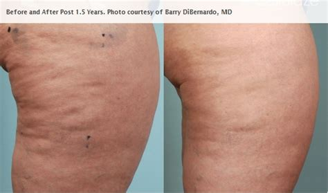 cellulaze laser cellulite removal reduction before and