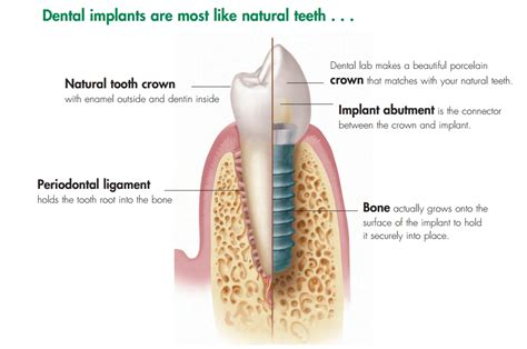 tooth implant deals