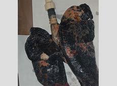 Smettere di fumare, il potere delle immagini (fotogallery ... Lung Cancer From Smoking Cigarettes