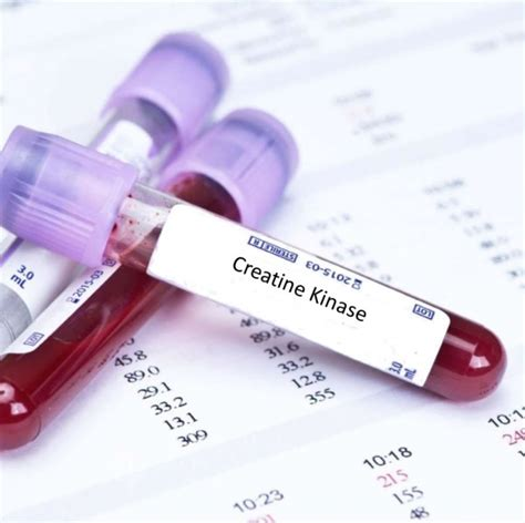 creatine blood c peptide blood tests in jpg