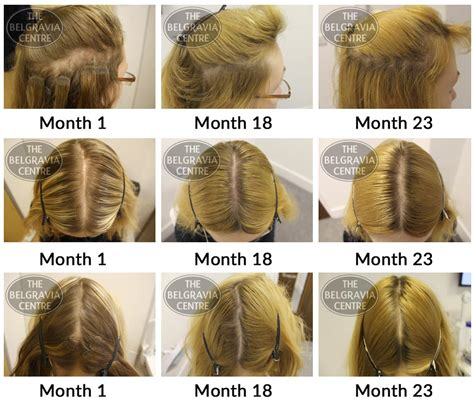 female pattern hair loss medscape belgravia hair loss blog