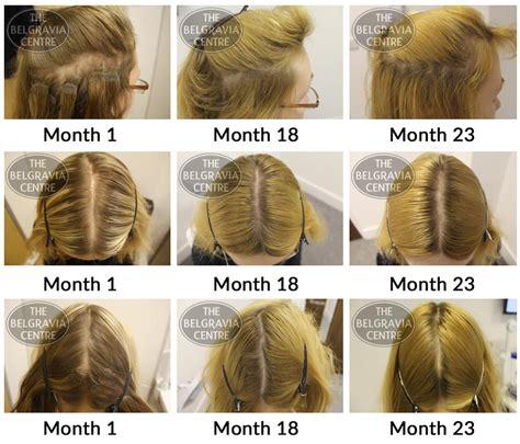 gpnotebook female pattern hair loss belgravia hair loss blog