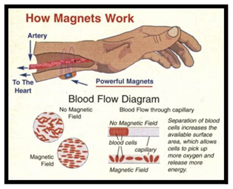 What Can Quantum Magnetic Braclets do for you