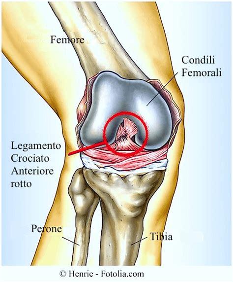dolore sopra la testa rottura dei legamenti crociati ginocchio e menisco