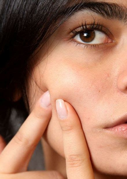 healthy fats and acne acne and its link to sugar dairy products and bad fats