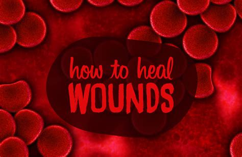how to a to heal how to heal wounds faster best remedies useful tips
