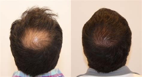 hair transplants 1000 graft coverage transplants 1000 graft coverage before and after photos of