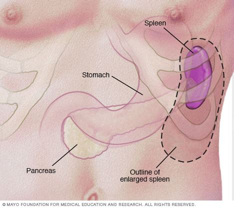 where is my spleen located diagram mononucleosis disease reference guide drugs