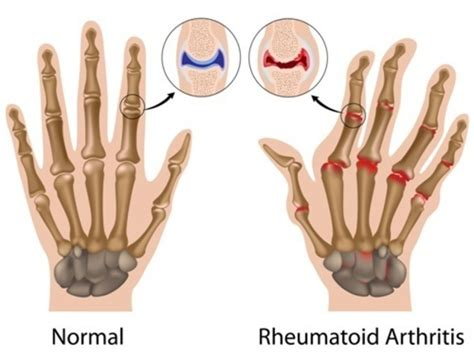 arthritis definition of arthritis by the free dictionary rheumatoid arthritis genetics home reference