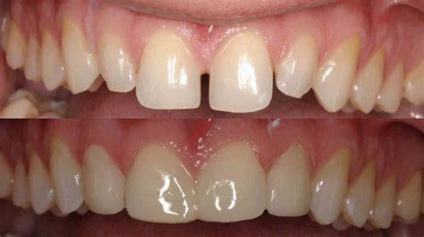 Veneer Komposit what are veneers cleveland dental veneers