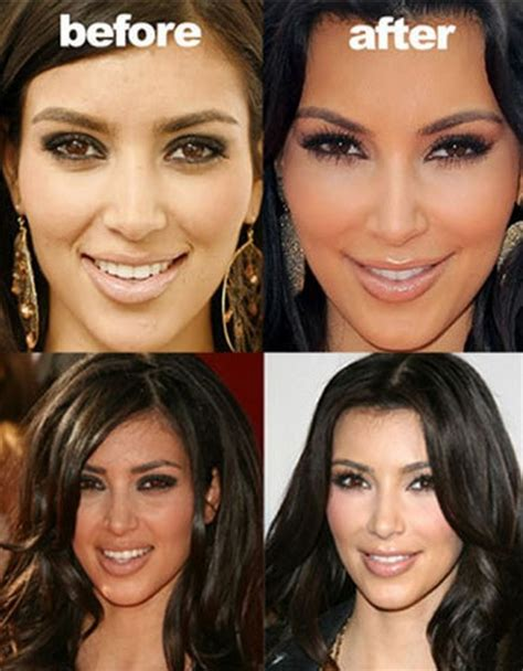Are Getting Bigger And Its Not Plastic Surgery by Before And After Plastic Surgery I