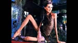 magersucht bilder vorher nachher against anorexia magersucht