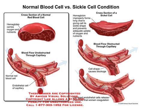sickle cell diagram normal blood cell vs sickle cell condition