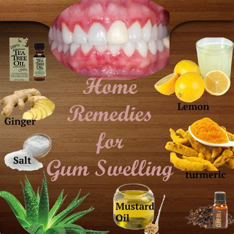 home remedies for gum swelling top 10 remedies for