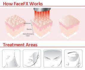 silk n facefx anti aging light based treatment device amazon com silk n sn 001 facefx anti aging led handheld
