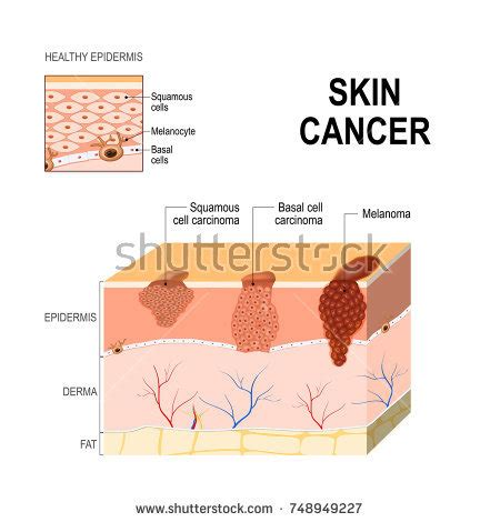 pattern analysis of tumors of epidermis and its appendages basal cell stock images royalty free images vectors