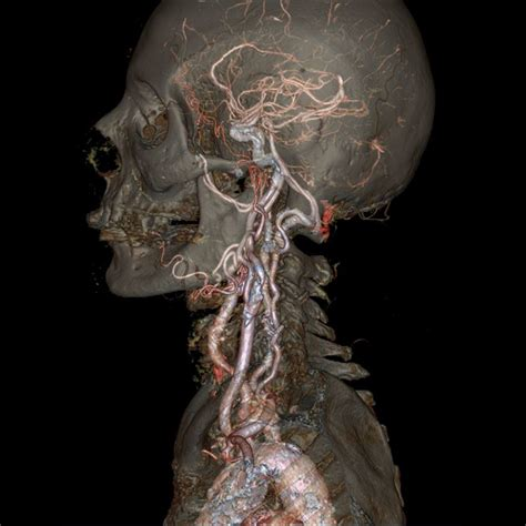 blood and earth modern medical imaging archives ge reports