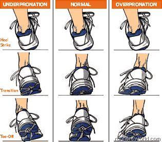 Wear Pattern Definition | overpronation runner unleashed