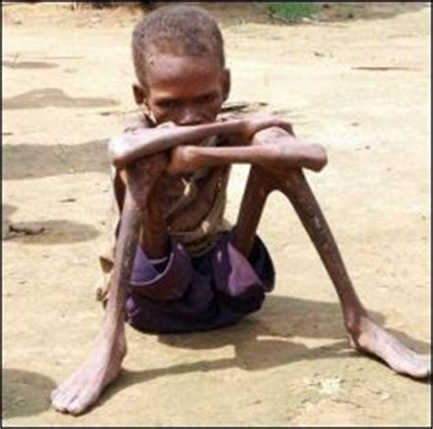 Poor African Kid Meme - citizen warrior the key to your listener s inability to confront the disturbing truth about islam