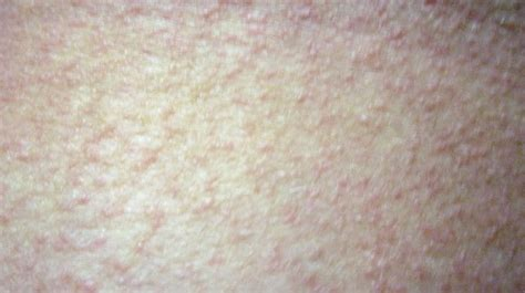 Detox Rash On Legs by Polymorphous Light Eruption Pmle Picture Back Of My