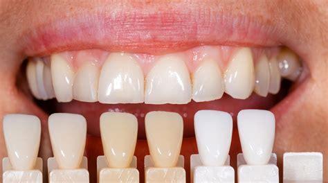 11 best porcelain veneers images porcelain vs composite veneers cosmetic dentistry