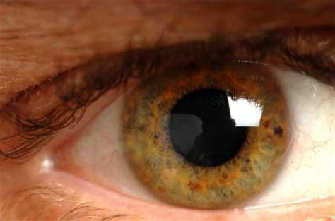 newborns eye color jaundice in
