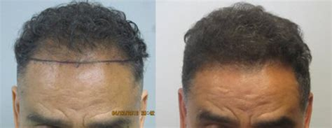 in south africa hair transplant mens before and after hair transplant photos