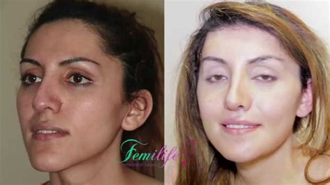 facial feminization procedures transgender plastic surgery before and after results facial feminizacion surgery by