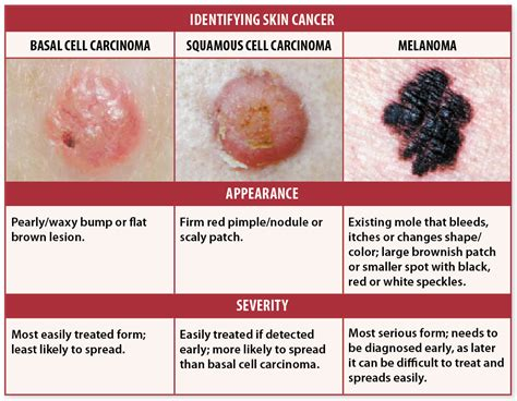 About My Skin Cancer by Skin Cancer Signs Self Checks May Help You Avoid Deadly