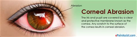 corneal abrasion causes symptoms treatment antibiotic