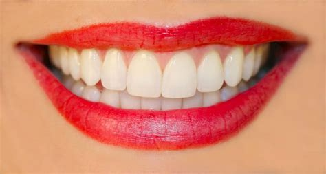 Dijamin Clear St Smile Oceanview Dental Care Cosmetic Dentists 3061 Brighton