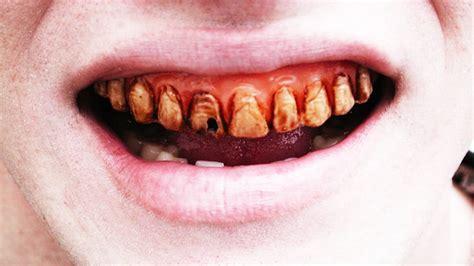 imagenes de negras sin dientes dientes torcidos dentaduras con deformidades severas en
