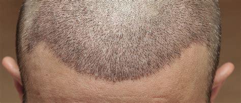 wann wachsen die haare nach einer haartransplantation nach einer haartransplantation