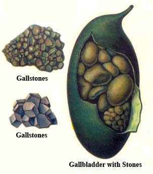 Liver And Gallbladder Detox Cleanse by Cleaning The Liver And Gall Bladder From Cumulative