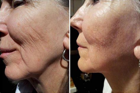 celebrity skin rejuvenation platelet rich plasma treatment purelife medi spa