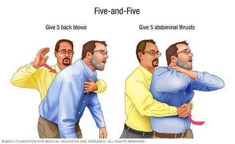 how to do the heimlich on a choking aid mayo clinic