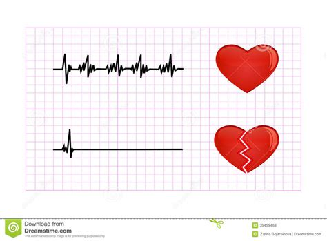 beat diagram heartbeat diagram illustration royalty free stock photos