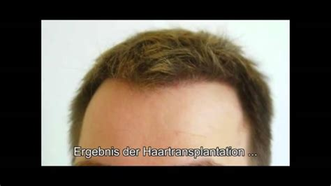fue hair transplant 1920 grafts whtc www ufue whtc fue hair transplant www ufue hairtransplant com